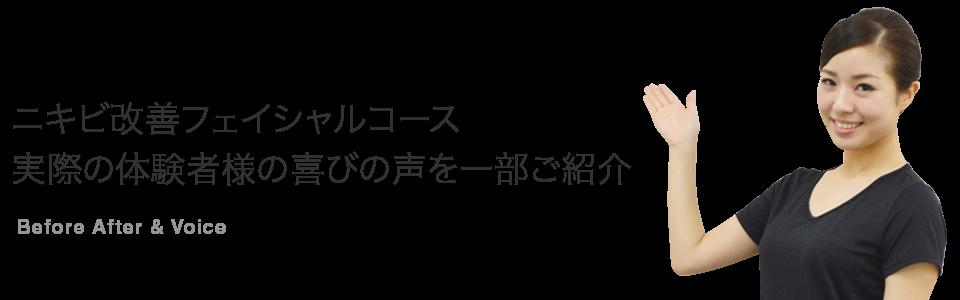 ニキビ改善フェイシャルコース 実際の体験者様の喜びの声を一部ご紹介
