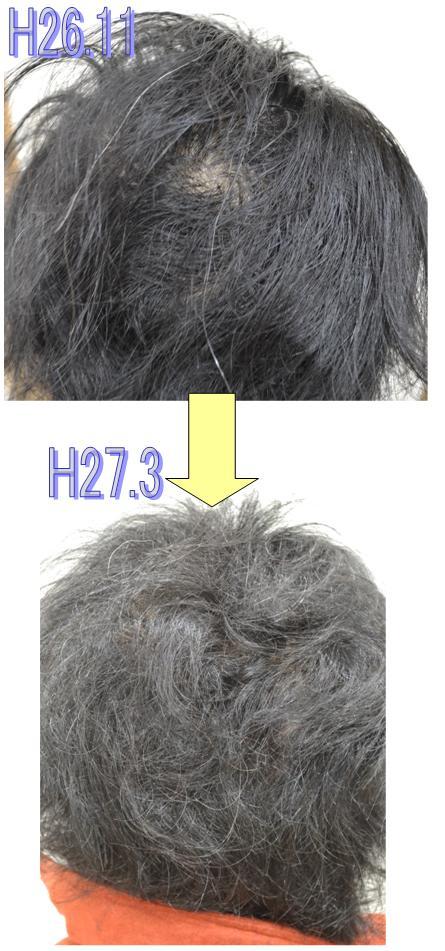 H11.3