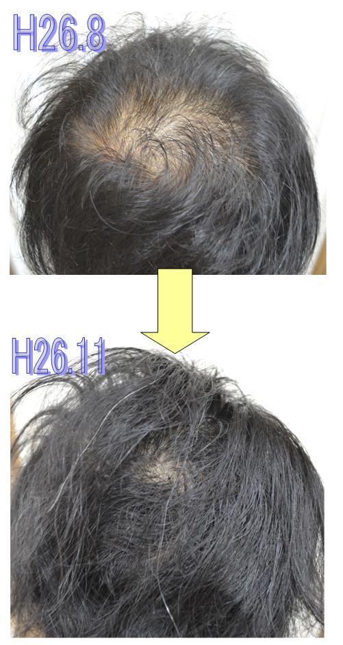 H8.11